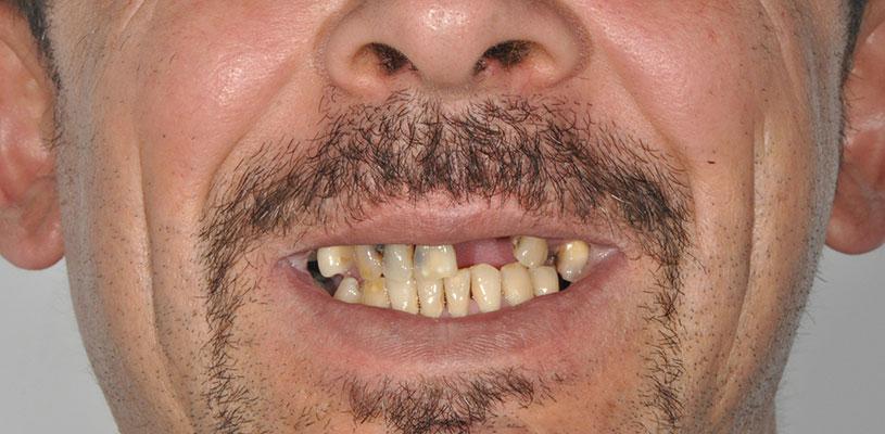 Fractură radiculară la dintele 21 cu fistulă